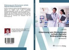 Buchcover von Erkennung von Hirntumoren mittels digitaler Bildverarbeitung