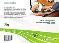 Bookcover of Atrial Tachycardia