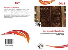 Bookcover of Acromicric Dysplasia
