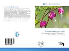 Bookcover of Adrenoleukodystrophy