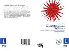 Bookcover of Caudal Regression Syndrome