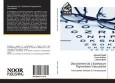 Décollement de L'Epithelium Pigmentaire Vascularisé kitap kapağı