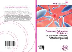Bookcover of Galactose Epimerase Deficiency