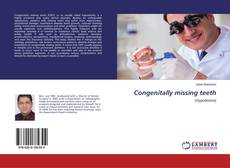 Bookcover of Congenitally missing teeth