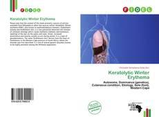 Bookcover of Keratolytic Winter Erythema