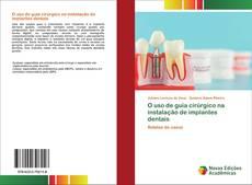 Portada del libro de O uso de guia cirúrgico na instalação de implantes dentais