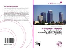 Bookcover of Carpenter Syndrome