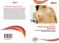Bookcover of Delayed Sleep Phase Syndrome
