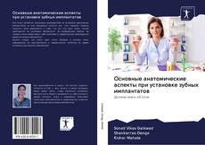 Borítókép a  Основные анатомические аспекты при установке зубных имплантатов - hoz