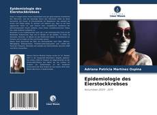 Copertina di Epidemiologie des Eierstockkrebses