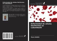 Portada del libro de Enfermedad de células falciformes en Lubumbashi
