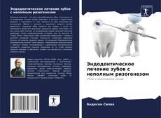 Bookcover of Эндодонтическое лечение зубов с неполным ризогенезом