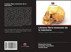 Lésions fibro-osseuses de la mâchoire kitap kapağı