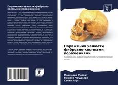 Обложка Поражения челюсти фиброзно-костными поражениями