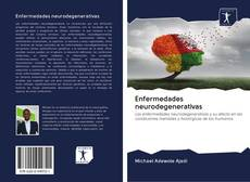 Copertina di Enfermedades neurodegenerativas