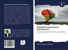Bookcover of Нейродегенеративные заболевания