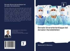 Bookcover of Dorsale Ulnararterienklappe bei dorsalen Handdefekten