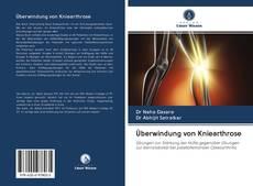 Bookcover of Überwindung von Kniearthrose