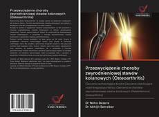 Обложка Przezwyciężenie choroby zwyrodnieniowej stawów kolanowych (Osteoarthritis)