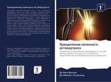 Bookcover of Преодоление коленного остеоартрита