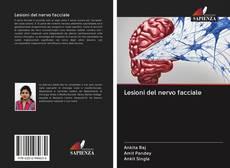 Copertina di Lesioni del nervo facciale