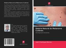 Couverture de História Natural do Melanoma Cutâneo.