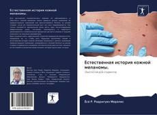 Обложка Естественная история кожной меланомы.