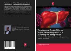 Copertina di Tumores de Dutos Biliares: Aspectos de Diagnóstico e Abordagem Terapêutica