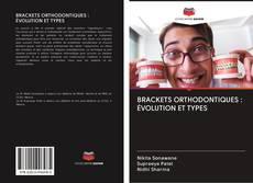 BRACKETS ORTHODONTIQUES : ÉVOLUTION ET TYPES的封面