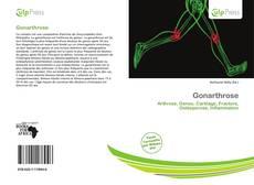 Bookcover of Gonarthrose