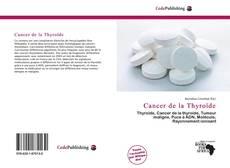 Bookcover of Cancer de la Thyroïde