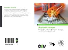 Bookcover of Chondrocalcinose