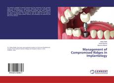 Bookcover of Management of Compromised Ridges In Implantology
