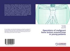 Bookcover of Operations of malignant bone tumors around knee in young patients