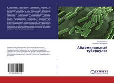 Couverture de Абдоминальный туберкулез