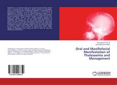 Bookcover of Oral and Maxillofacial Manifestation of Thalassemia and Management
