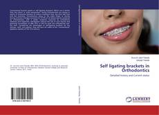 Bookcover of Self ligating brackets in Orthodontics
