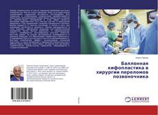 Bookcover of Баллонная кифопластика в хирургии переломов позвоночника
