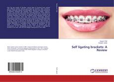 Bookcover of Self ligating brackets: A Review