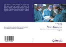 Bookcover of Tissue Expanders