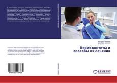 Bookcover of Периодонтиты и способы их лечения