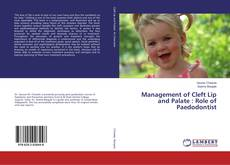 Bookcover of Management of Cleft Lip and Palate : Role of Paedodontist