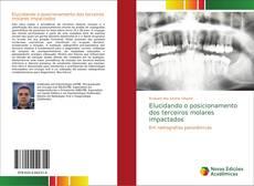 Bookcover of Elucidando o posicionamento dos terceiros molares impactados