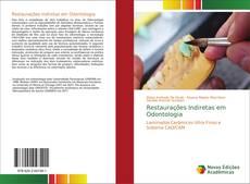 Buchcover von Restaurações Indiretas em Odontologia