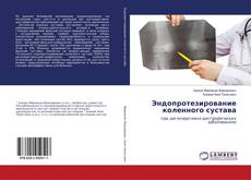 Bookcover of Эндопротезирование коленного сустава