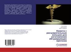 Bookcover of Кювета с расширительным кольцом для изготовления обтурирующих протезов