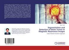 Segmentation and Detection of Brain Tumor in Magnetic Resonance Images kitap kapağı