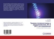 Portada del libro de Травма позвоночника в рентгеновском, КТ и МРТ исследовании
