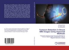 Bookcover of Tumours Detection in Breast MRI Images Using Improved Methods