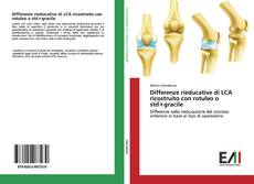 Bookcover of Differenze rieducative di LCA ricostruito con rotuleo o std+gracile